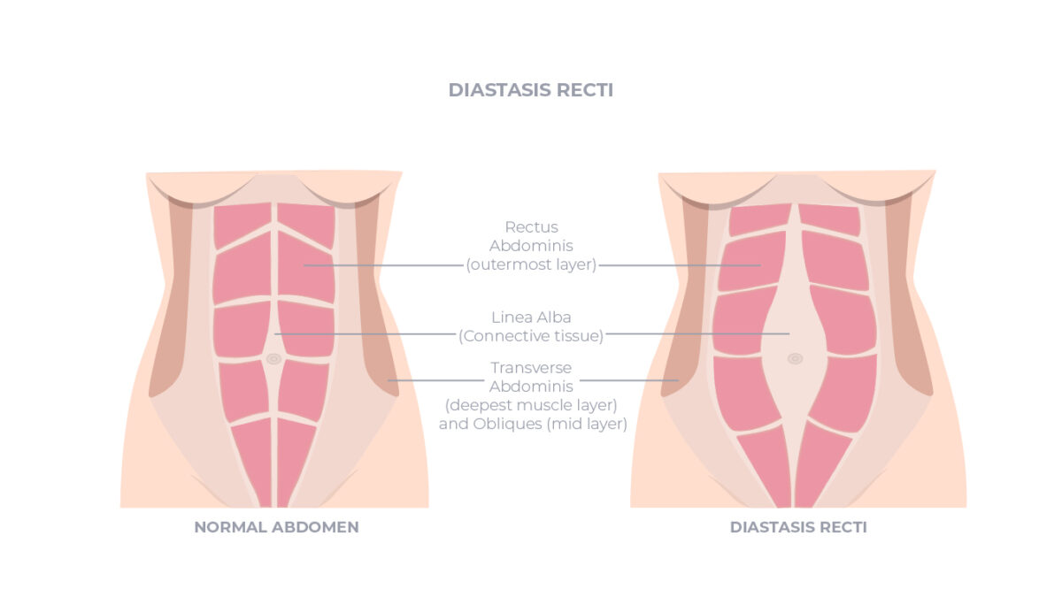 7 Best After Delivery Exercises to Avoid Diastasis Recti